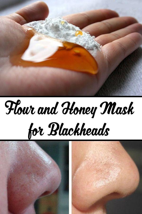 DIY Face Masks For Blackheads  Best 25 Get Rid Blackheads ideas on Pinterest