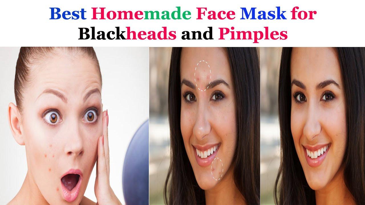 DIY Face Masks For Blackheads  Best Homemade Face mask for Blackheads and Pimples