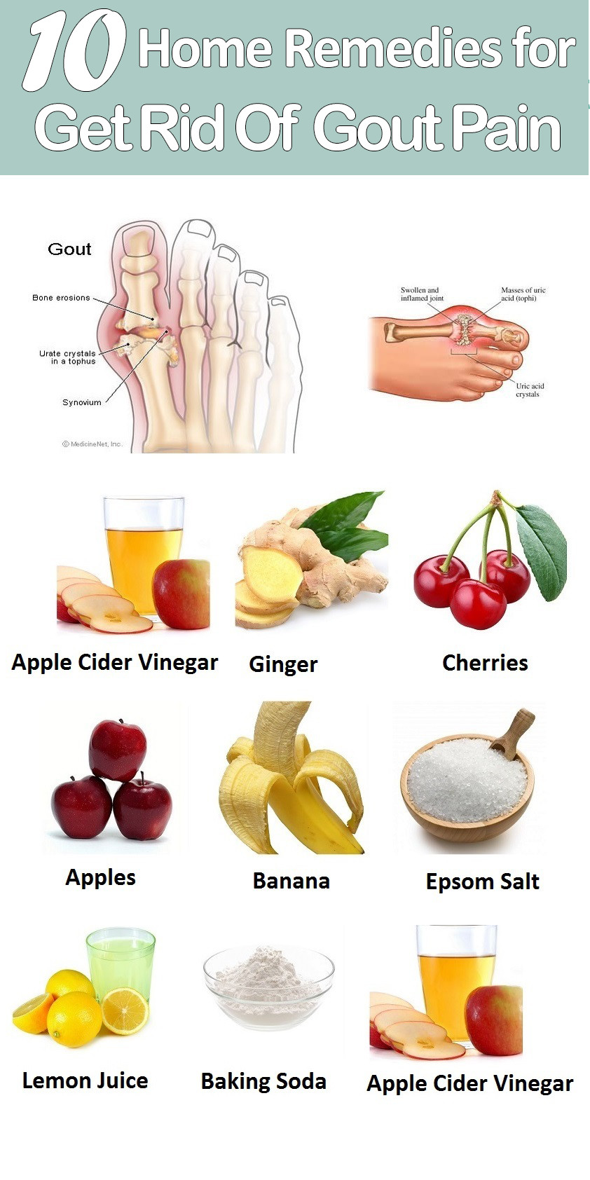 DIY Home Remedies  10 DIY Home Reme s for Gout Pain